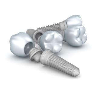 Reparación de implantes dentales