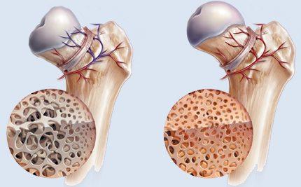 Osteonecrosis maxilar y mandibular asociada a bifosfonatos