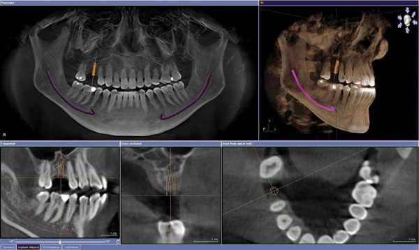 nuevas tecnologias en odontologia