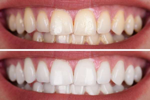 ¿Es compatible un blanqueamiento dental con un implante dental?
