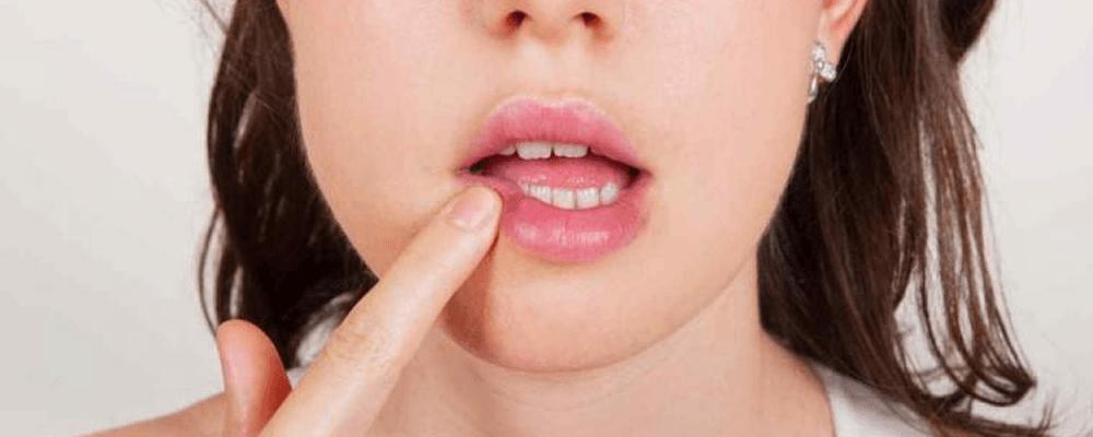 ¿Cómo detectar el cáncer oral?