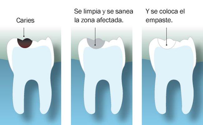 Pasos para hacer un empaste dental