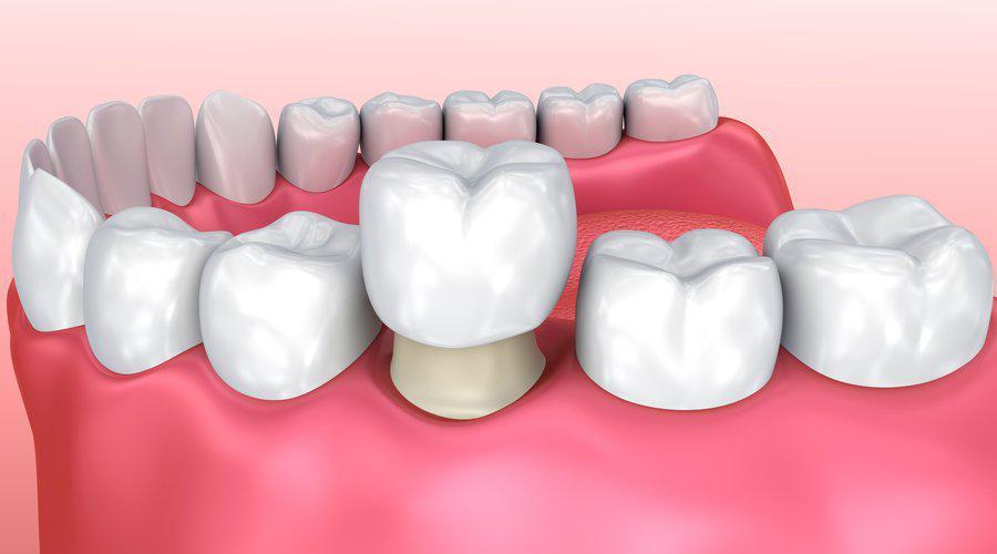 Coronas dentales de porcelana - cerámica