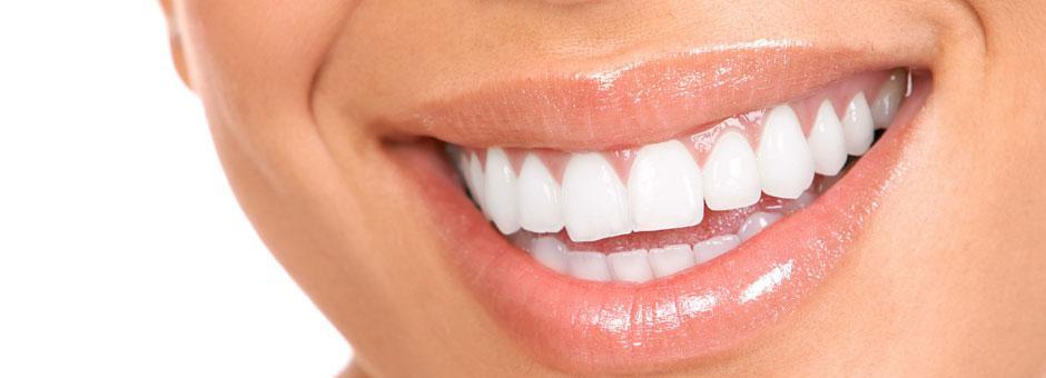 Coronas dentales de Disilicato de Litio