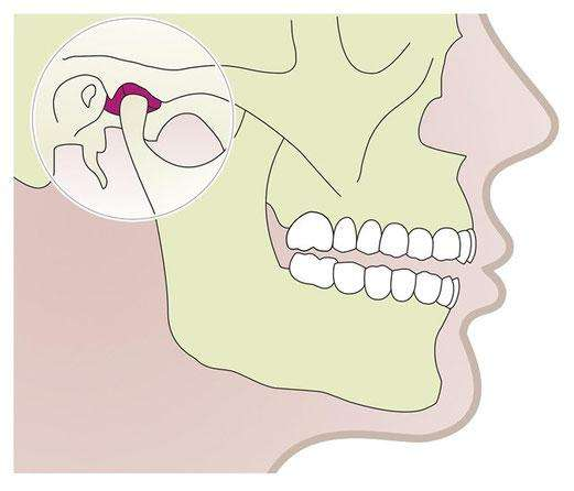 Enfermedades de la articulación temporo mandibular (ATM)