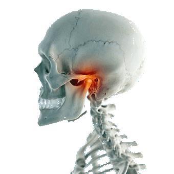 Osteoartritis osteoartrosis