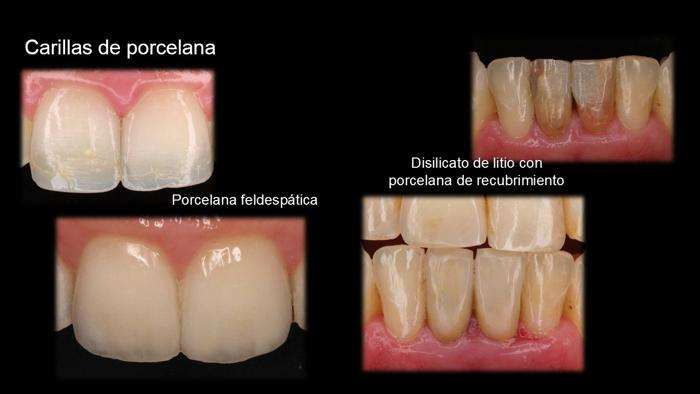 Porcelana feldespatica