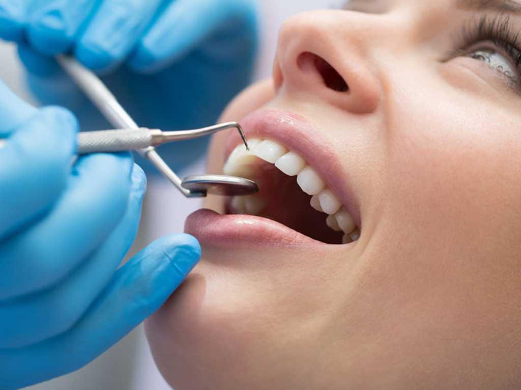 Sistema CEREC fundas coronas dentales