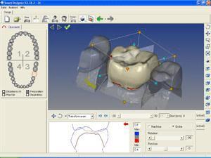 Estapas procesos digitales en la odontología