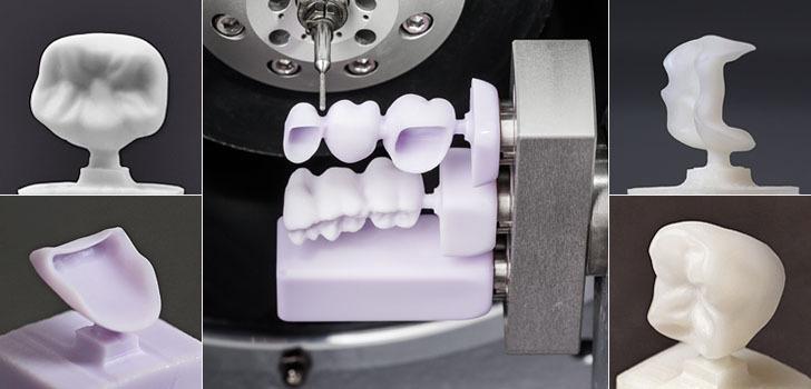 Impresión 3D odontología digital