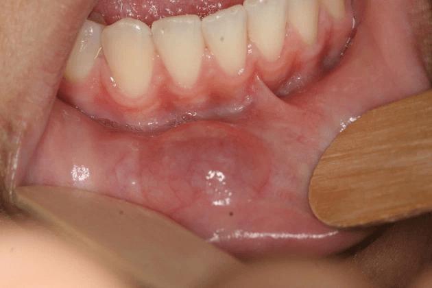 Tipos de mucocele
