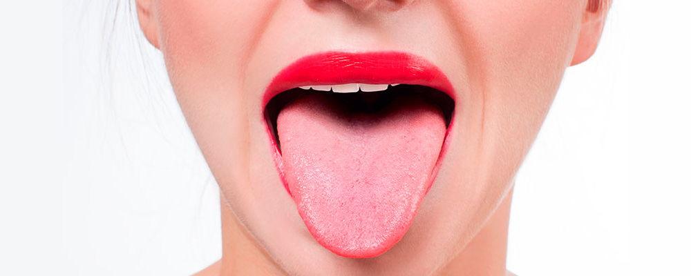 Candidiasis oral: tipos, síntomas y tratamiento