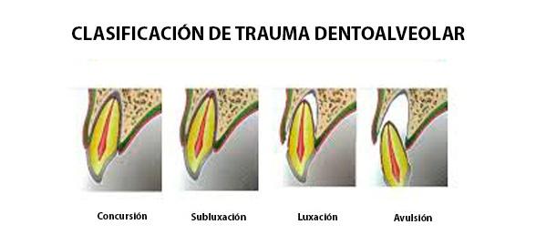 Clasificación trauma dentoalveolar