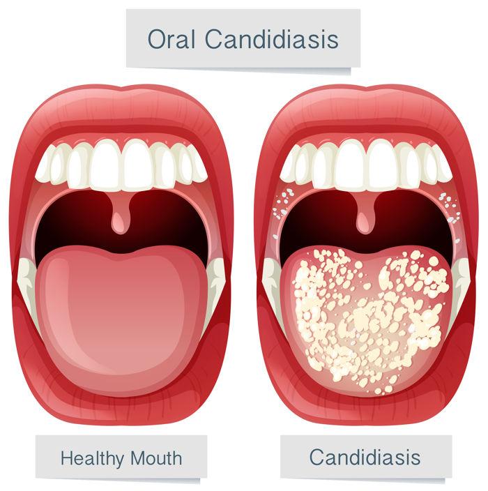 Tipos de candidiasis bucal