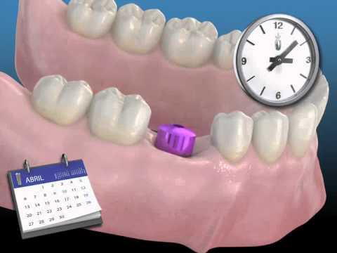 Las primeras horas después de colocarse un implante dental