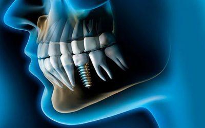 Tiempo de recuperación tras la colocación de implantes dentales