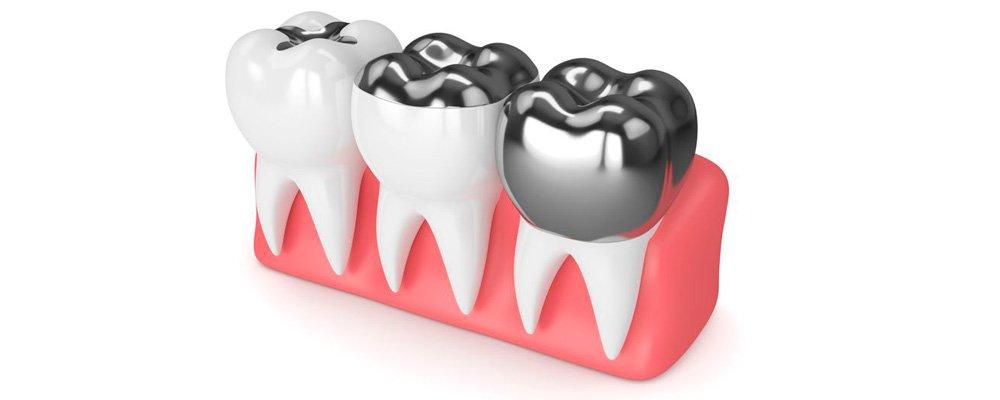 Diferencia entre una corona y una incrustación dental