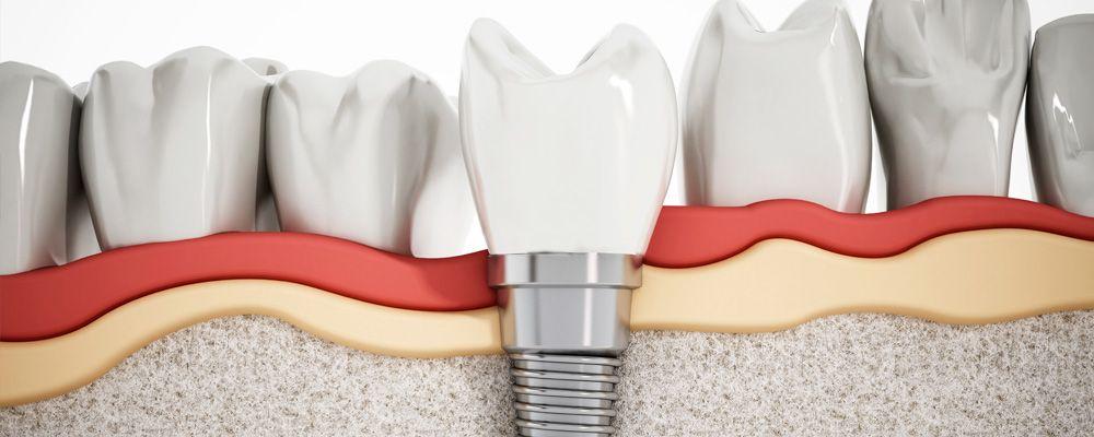 Funda de implante dental con el sistema CEREC