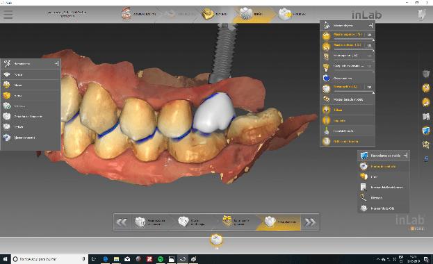 Escáner intraoral de CEREC