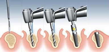 Proceso colocación implante dental