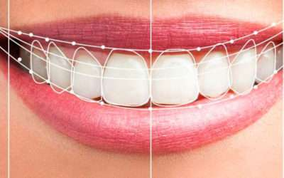 Tipos de carillas dentales, como se colocan, tipos, ventajas e inconvenientes