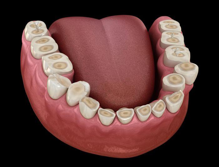 Desgaste dental por bruxismo