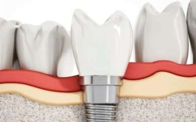 Dolor en los dientes adyacentes al implante