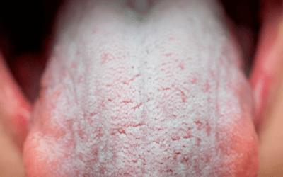Causas y tratamiento de la sequedad de boca