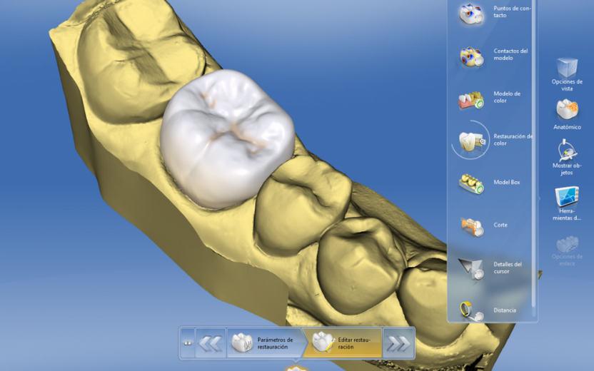 Escáner CAD-CAM