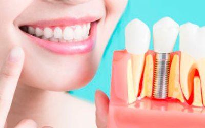 ¿Cuántos implantes dentales se pueden poner en un día?