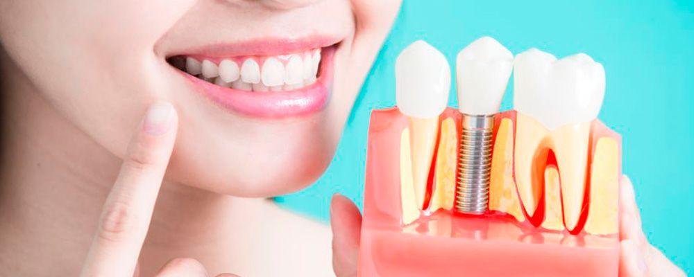 ¿Cuantos implantes dentales se pueden poner en un día?