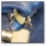 ¿Cómo se realiza el proceso de una incrustación dental?