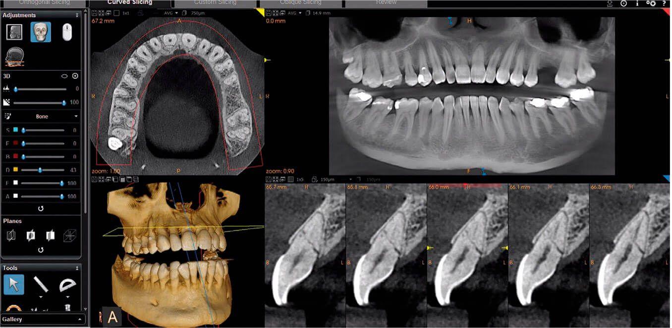 Radiografía panorámica