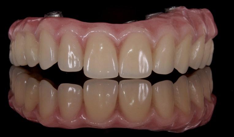 Prótesis dental arcada completa