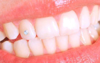 El peligro de las decoraciones dentales para sonrisas personalizadas