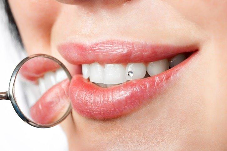 Decoraciones dentales