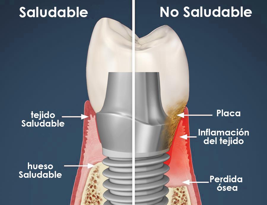 Síntomas rechazo implante dental