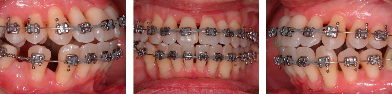 Antes y después tratamiento ortodoncia