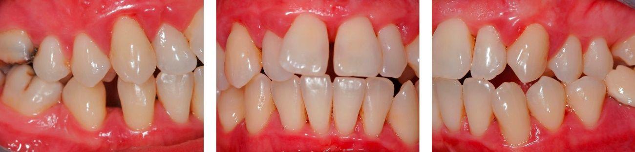Antes y después tratamiento periodontal