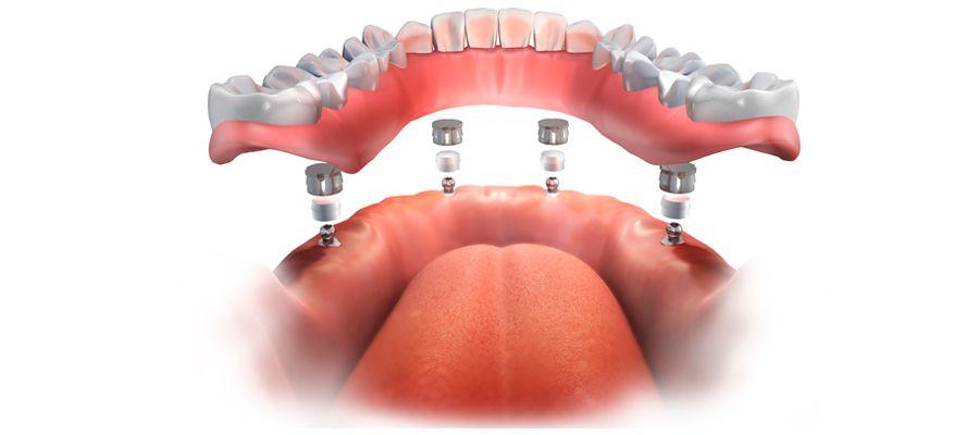 Beneficios de la prótesis implantosoportada
