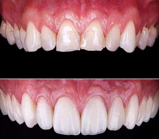 Carillas dentales antes después