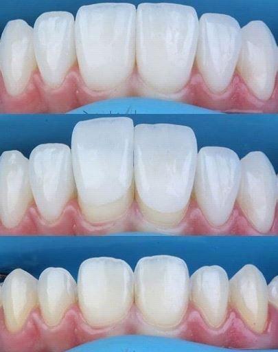 Carillas dentales en 1 día