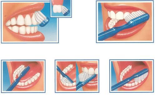 Como usar el cepillo de dientes