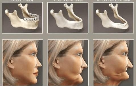 Consecuencia pérdida hueso dental