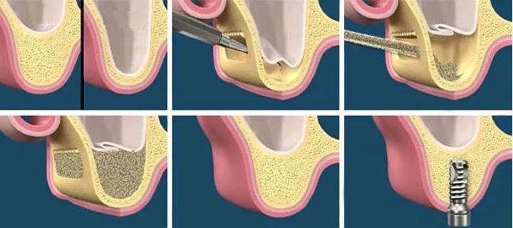 Procedimiento elevación seno maxilar