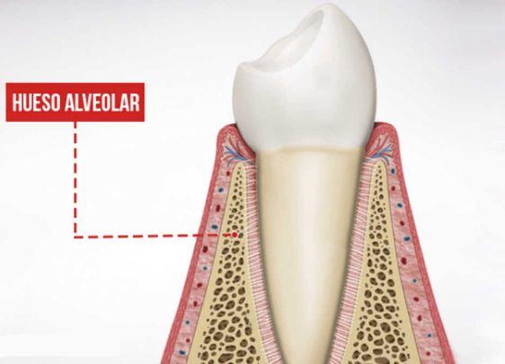 La importancia del hueso en los implantes dentales