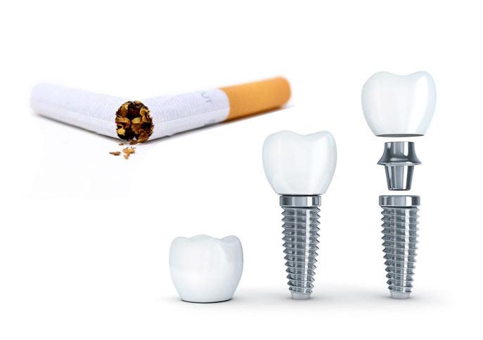 Hábitos y patologías rechazo implantes dentales