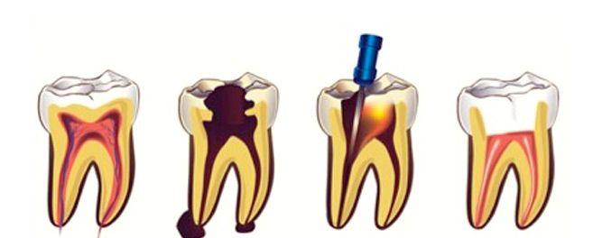 Proceso endodoncia