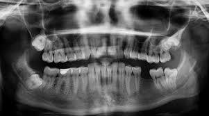 Radiografía panorámica u ortopantomografía