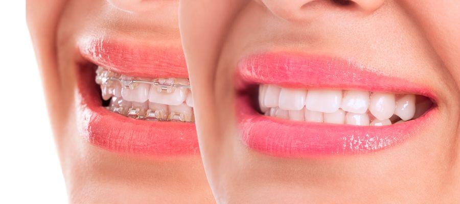 Fases ortodoncia